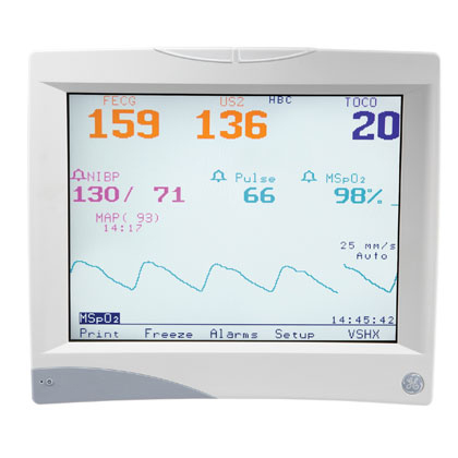 Corometrics 250 Series Maternal/Fetal Monitor Online Technical Education
