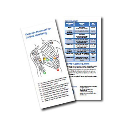 Arrhythmia Recognition Card Pack of 25